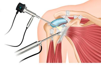 La artroscopia de hombro y la artroscopia de cadera